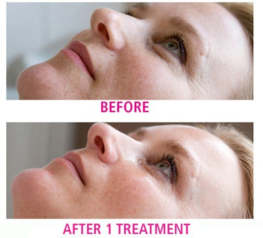 Oxygen Facial Procedure
