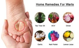 Home Remedies To Get Rid Of Warts Naturally