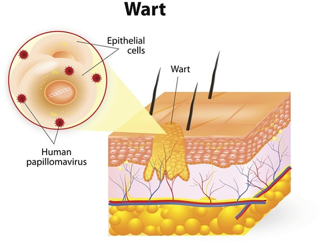 Best Way To Remove Warts On Face