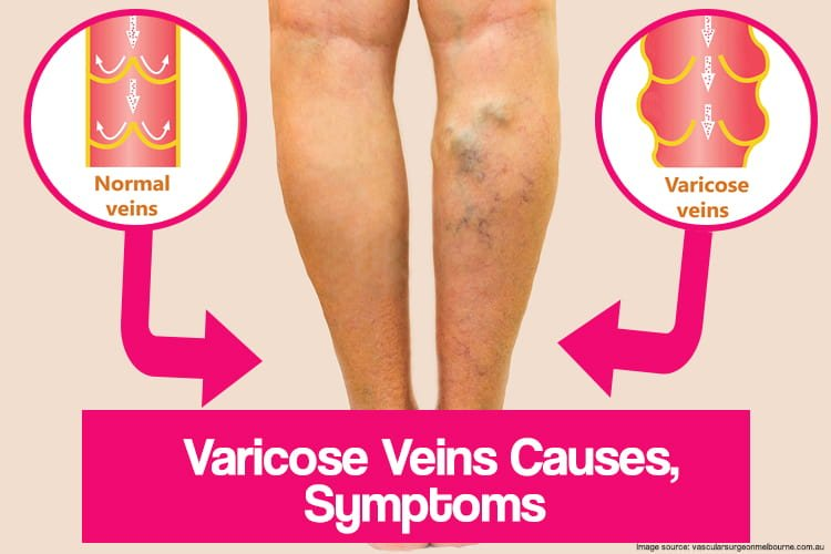 Varicose Veins Causes and Symptoms