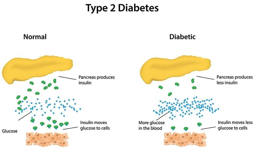 Type-2 Diabetes