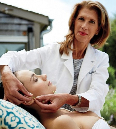 Shellie Goldstein in the cosmetic acupuncture