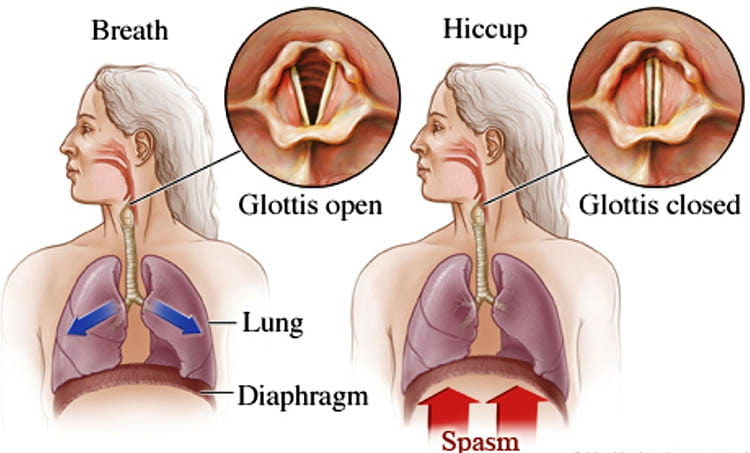 Symptoms Of Hiccups