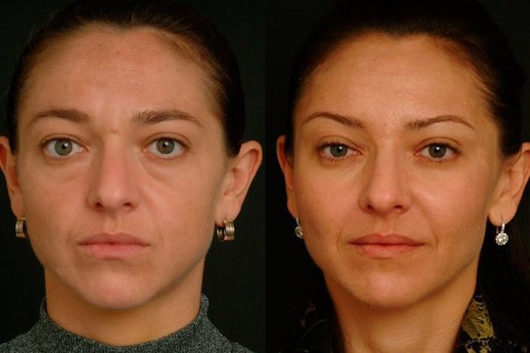 Facial Fat Grafting