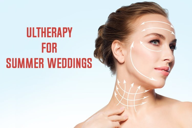 Ultherapy For Summer Weddings