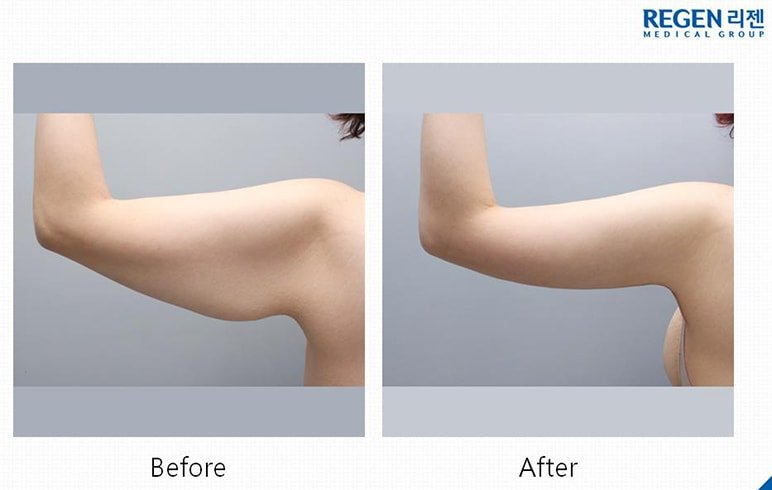 Armplasty Before After