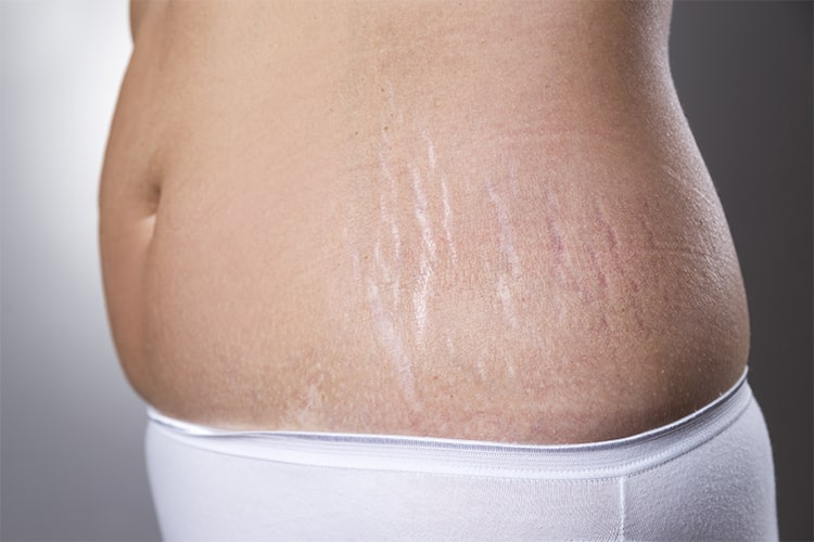 Home Remedies To Reduce Stretch Marks At Home